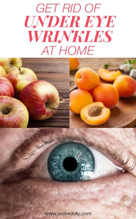 The Best Home Remedies For Under-Eye Wrinkles