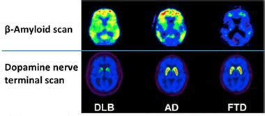 Brain Imaging: What Does it See in DLB? | ALZFORUM